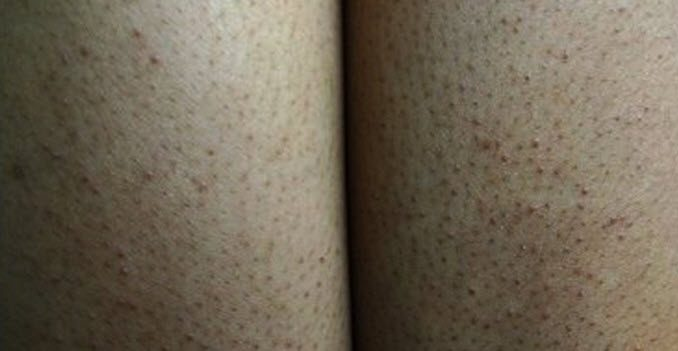 keratosis pilaris home remedies