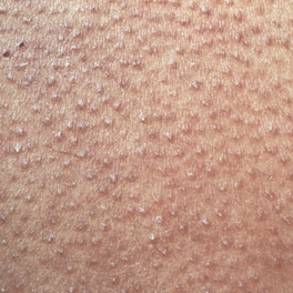 keratosis pilaris treatment natural remedies