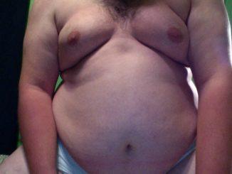 treatment for man boobs