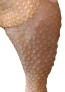 i have chicken skin on my legs