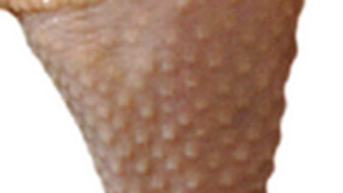my-legs-look-like-chicken-skin
